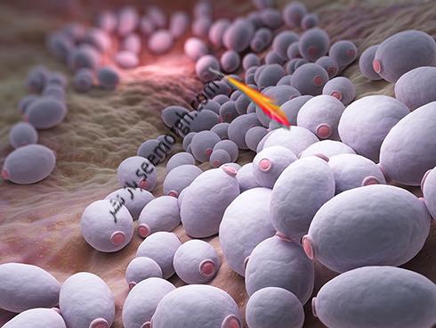 عفونت قارچی,عفونت قارچی واژن