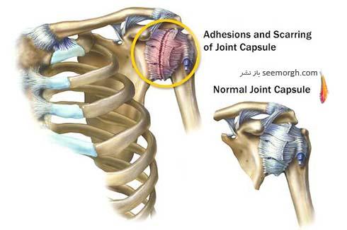 التهاب مفصل شانه