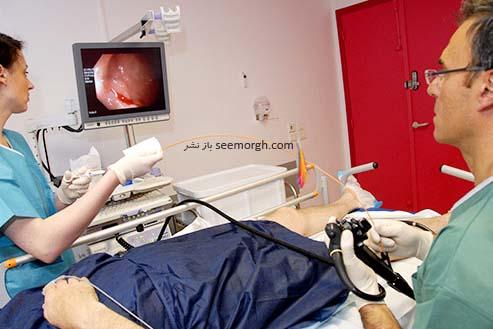معاینه روده بزرگ،سرطان کلورکتال