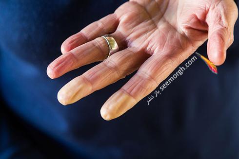 بیماری رینود,دست,انگشت