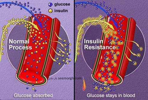 جذب انسولین