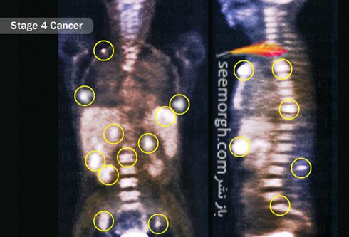 مراحل سرطان کبد