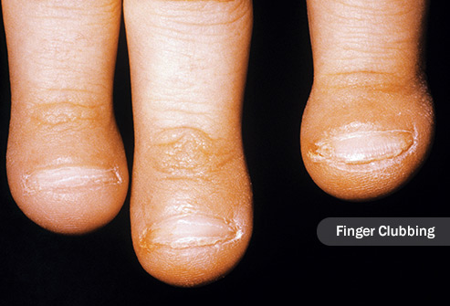 قاشقی شدن انگشت ها