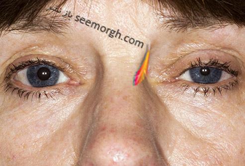 مردمک چشم,تفاوت در اندازه مردمک چشم