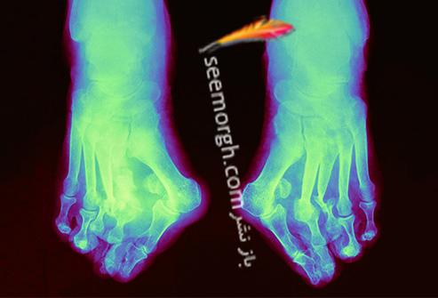 شارکو پا Charcot Foot