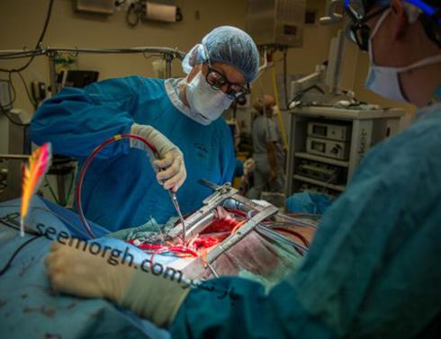 عمل قلب باز,جراحی