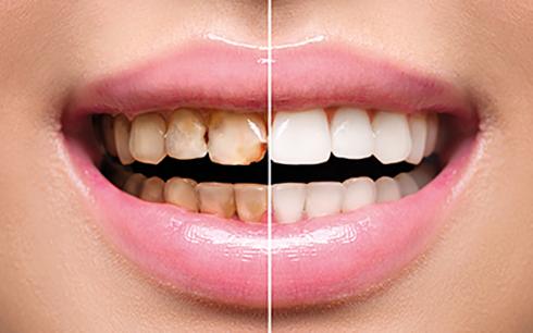 پوسیدگی دندان,دندان