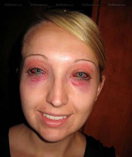 عفونت چشم های عروس خانم