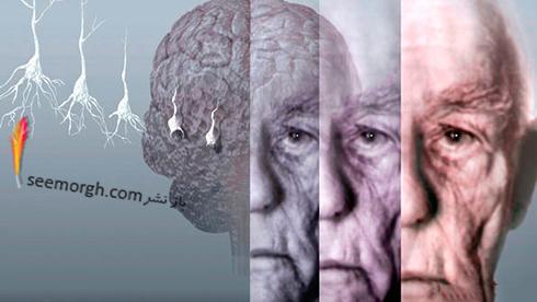 آلزایمر,بیماری آلزایمر