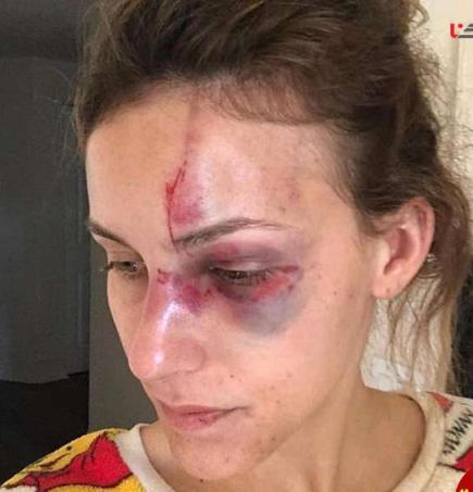 وضعیت صورت ملیسا پس از حمله نامزدش به وی