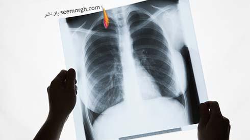 رادیولوژی سینه