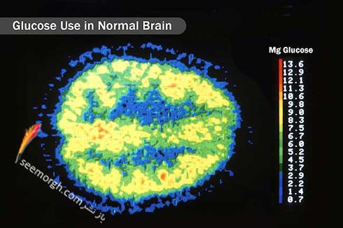 مغز,عکس مغز