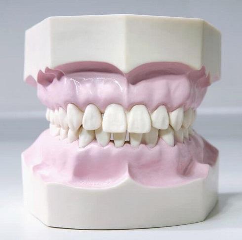 لثه,دندان