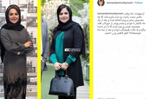عکس کمند امیرسلیمانی قبل و بعد از رژیم