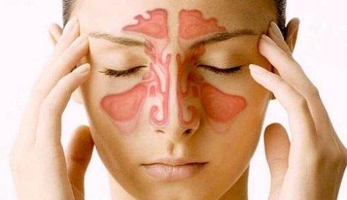 sinusitis-treatment01.jpg