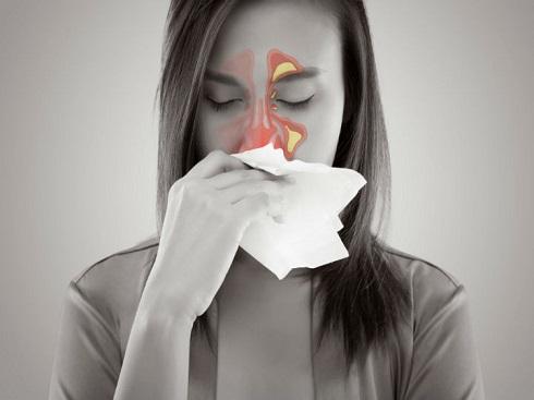 sinusitis-treatment02.jpg