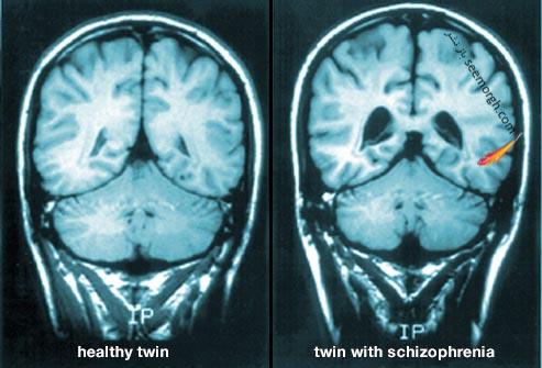 اسکن مغز اسکیزوفرنی