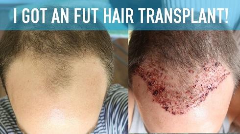 hair-transplant-FUT, کاشت مو FUT