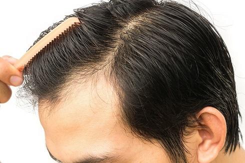 کاشت مو,ریزش مو