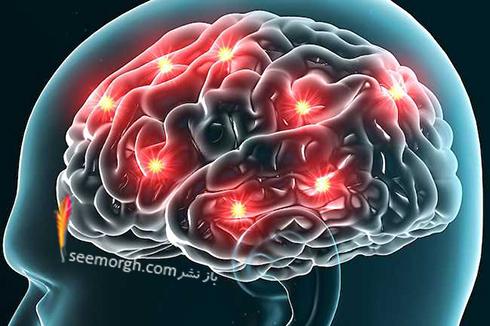 سیگنال های مغز