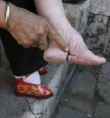 پای تاخورده و شکسته معیار زیبایی در چین