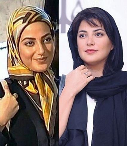 عکس منتشر شده از تغییر چهره طناز طباطبایی قبل و بعد از جراحی زیبایی