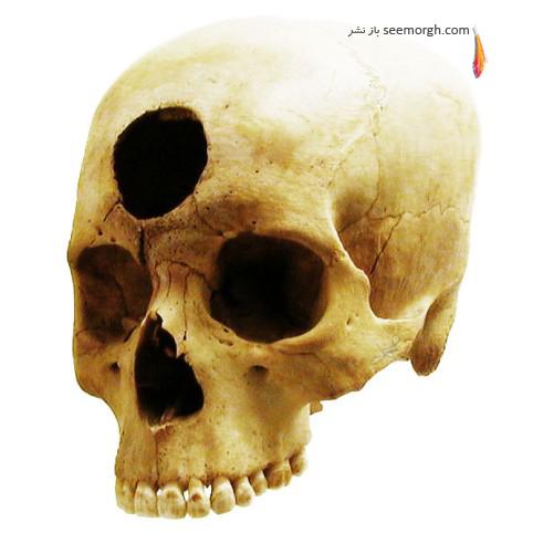 قرون وسطی,پزشکی قرون وسطی,درمان قرون وسطی,جراحی چشم,جراحی مغز,هموروئید,سوند زدن