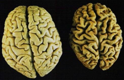 مغز پیر و جوان