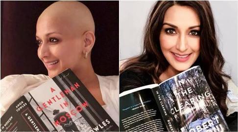 چهره سونالی بندره قبل و بعد از ابتلاء به سرطان