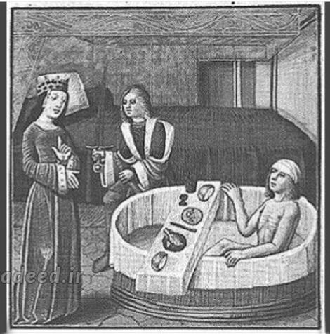 روشهای آرایشی قدیم,رفتارهای ارایشی قدیم,عجیب ترین ملاکهای زیبایی,ملاک زیبایی در گذشته,درمان طاسی,جلوگیری از بارداری