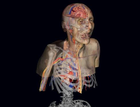 پروژه Visible Human یا انسان مرئی
