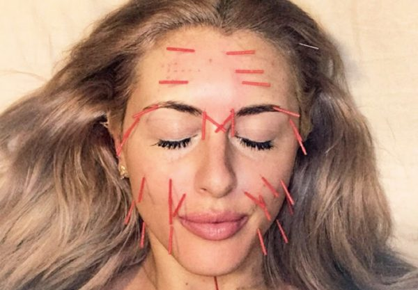 cosmetic acupuncture e1547549737692