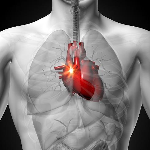 قلب درد,درد قلب
