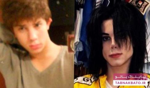 قبل و بعد از جراحی زیبایی برای شبیه شدن به مایکل جکسون