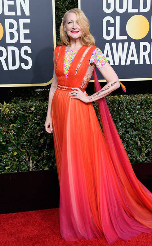 Patricia-Clarkson-bad-dress-golden-globes2019.jpg