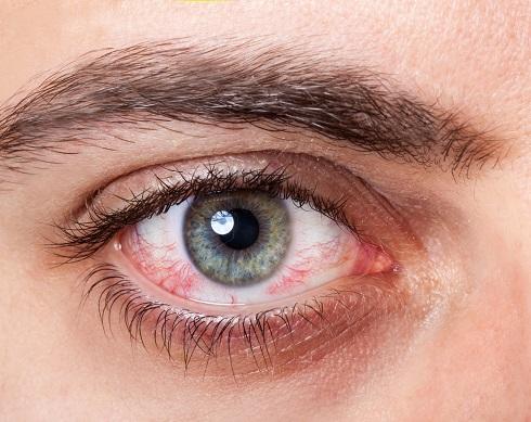 قرمزي چشم
