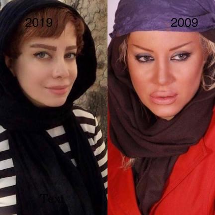 چهره شراره رخام 10 سال پیش و حالا