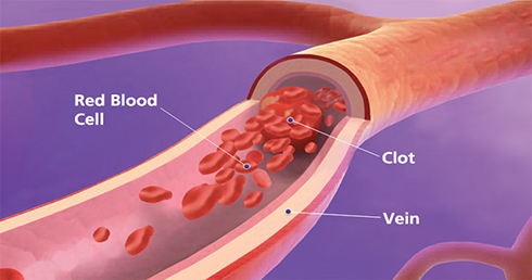 blood-clot1.jpg