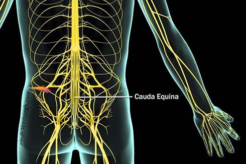 Complications_cauda_equina_anatomy.jpg