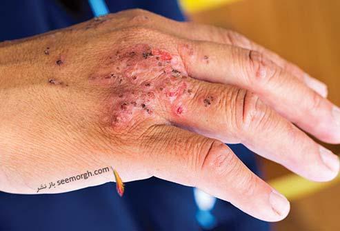 عفونت پوستی