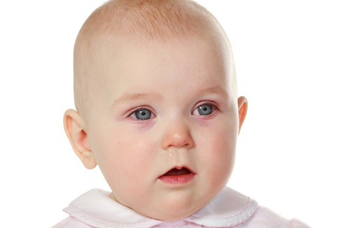 قرمزی چشم نوزاد