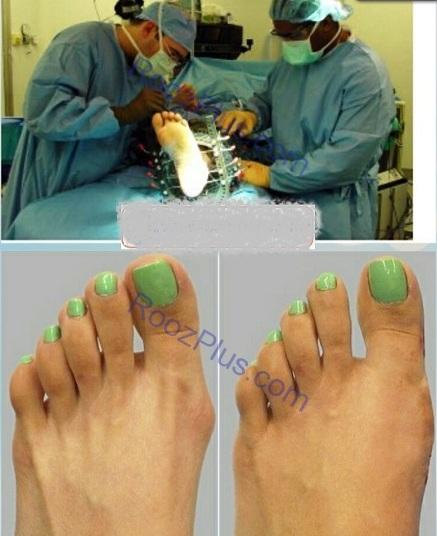 جراحی سیندرلایی کردن پا