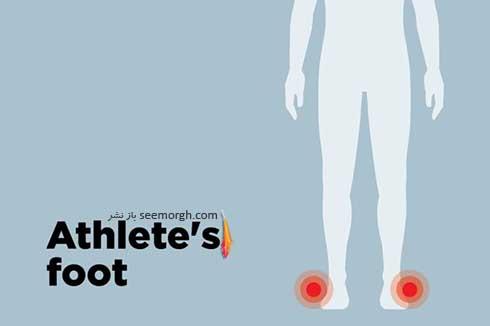 پای ورزشکار