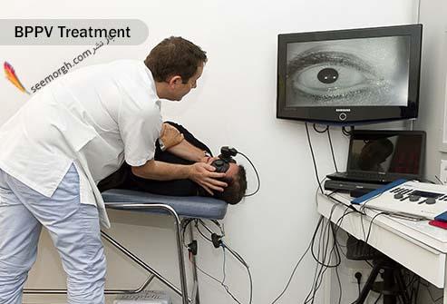 درمان سرگیجه موضعی پاروکسیسمال خوش خیم Benign Paroxysmal Positional Vertigo