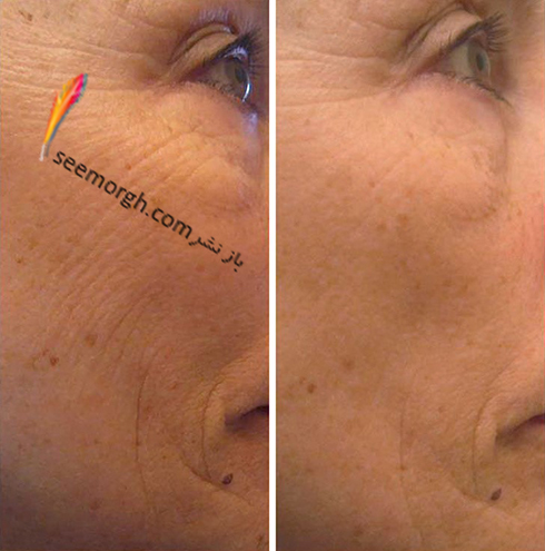 home-mask-lifting-skin.jpg