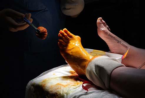 جراحی پا