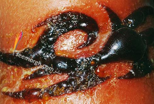 عفونت پوستی ناشی از تاتو