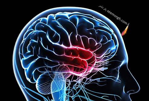 میگرن وستیبولار Vestibular Migraine