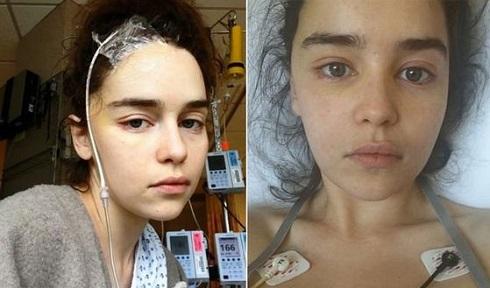 ستاره بازی تاج و تخت امیلیا کلارک Emilia Clarke در بیمارستان
