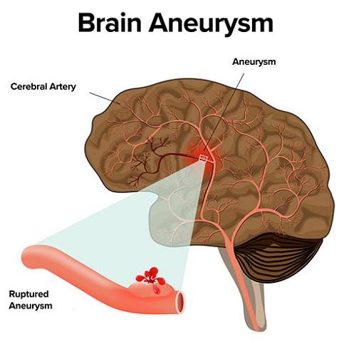 بیماری امیلیا کلارک آنوریسم مغزی